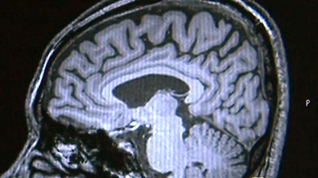 뇌 구조, 전기회로도로 푼다.. 파킨슨병 조기 진단 길 열어
