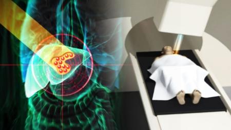 암세포만 죽이는 '꿈의 치료기'…4년 뒤 문 연다