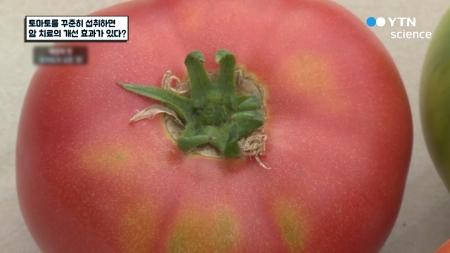 토마토를 꾸준히 섭취하면 암 치료의 개선 효과가 있다?